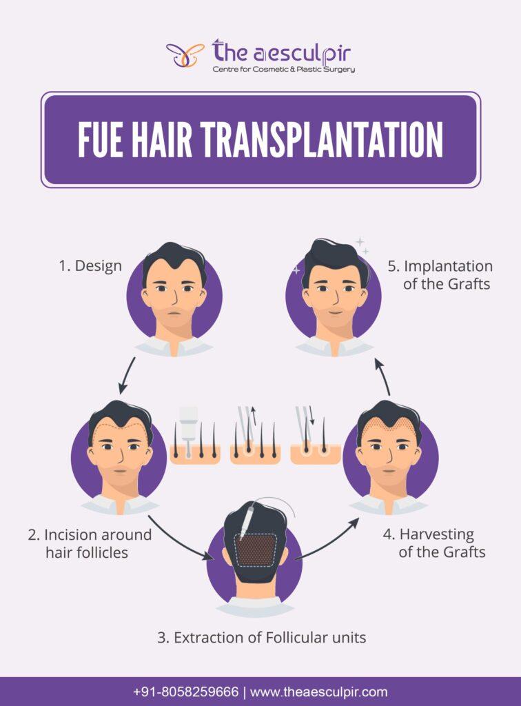 hair transplant surgery in delhi