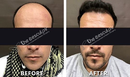 Before After Hairtransplant